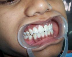 dental11