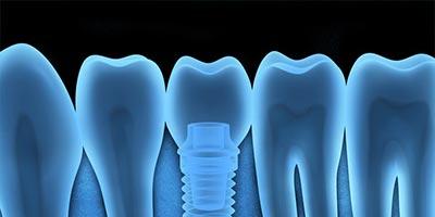 dentalimplants2